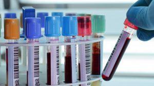 laboratoire-analyses-medicales