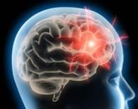 Accident Vasculaire Cérébral, agir vite c'est important : appelez le 15 !